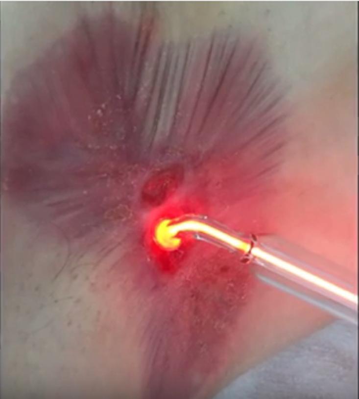 """Behandlung mit """"Plasma-ONE"""""""